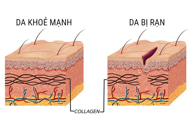 rạn da khi mang thai
