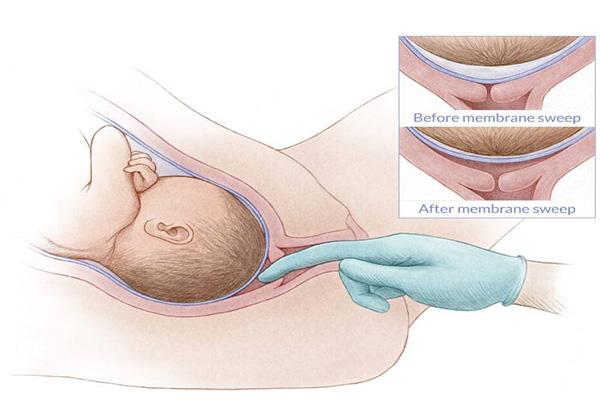 """Mẹ bầu sẽ được kiểm tra tử cung để biết được """"độ mở"""""""