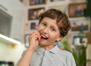 Vì sao bé bị sâu răng và phương pháp điều trị