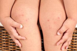 Bé bị nổi mẩn đỏ ở đầu gối là bệnh gì và có nguy hiểm không?