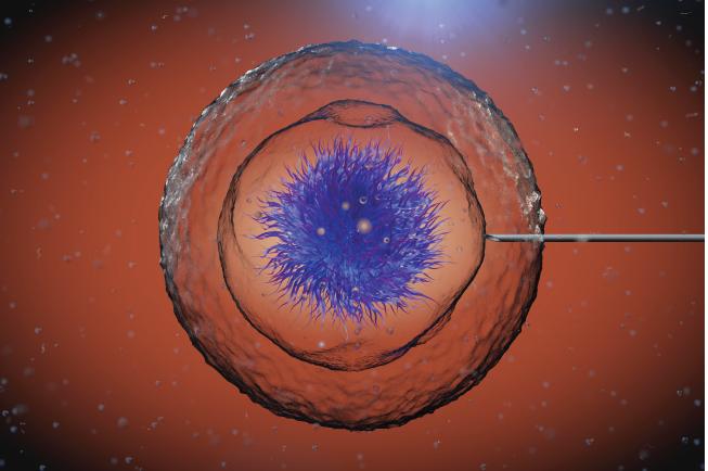 Tình trùng được bơm vào trong trứng thông qua phương pháp IUI