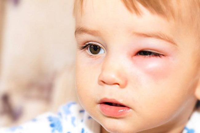 Tuy mẩn đỏ quanh mắt không phải là vấn đề nguy hiểm, nhưng mẹ đừng chủ quan vì có thể gây biến chứng liên quan đến mắt nếu chăm sóc sai cách đó mẹ.
