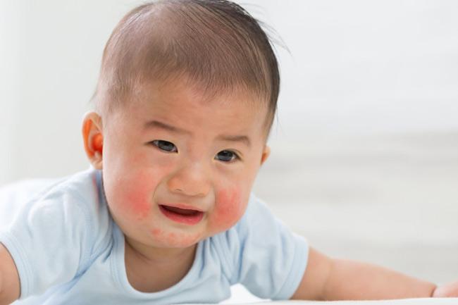 Bé bị nổi mẩn đỏ khắp người và ngứa do chàm sữa sẽ xuất hiện nhiều ở mặt, cằm và cổ hơn các vị trí khác