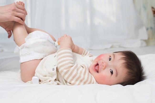 Đóng bỉm sai cách có thể khiến bé bị hăm tã