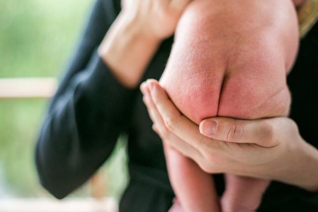Hăm tã nước tiểu khiến vùng da mặc tã của con ửng hồng