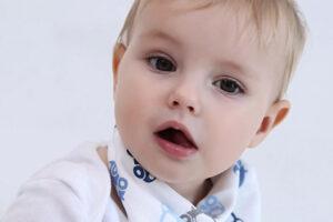 Bé 5 tháng bị mẩn đỏ quanh miệng | 6 nguyên nhân và cách xử lý