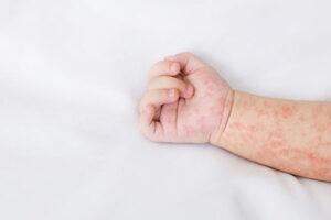 5 nguyên nhân trẻ bị mẩn đỏ ngứa và cách xử lý cho mẹ