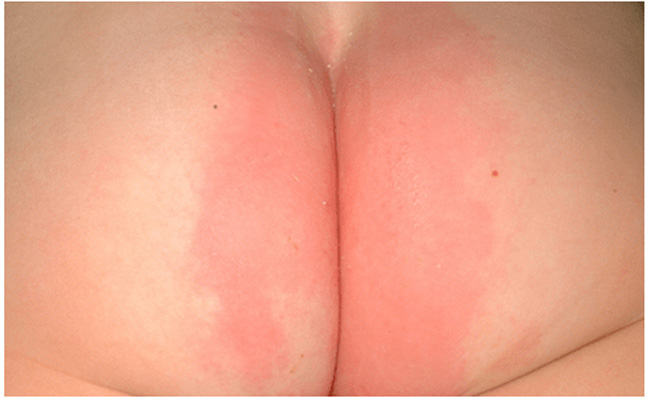 Vùng da mặc tã ửng đỏ là biểu hiện đầu tiên khi bị hăm